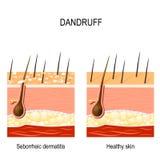 dandruff dermatite seborrheic illustrazione vettoriale