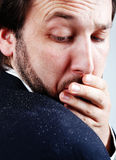 Dandruff Issue On Man S Sholder Royalty Free Stock Photography