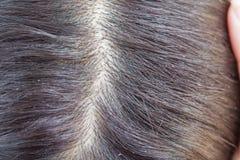 Dandruff on scalp. And Black hair stock photos