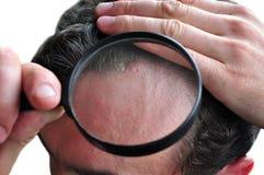 Dandruff skin disease royalty free stock photos