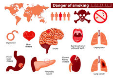Danger smoking. Signs, symptoms, stage and risk factors. Medical infographic. Set elements and symbols for your design stock illustration