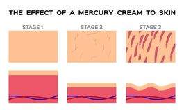 Dangerous mercury cream damaged human skin. White background Royalty Free Stock Photo