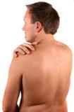 Danneggiare dolore nella spalla Fotografia Stock