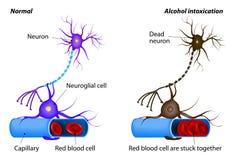 Danno del nervo causato da intossicazione pesante dell'alcool illustrazione di stock