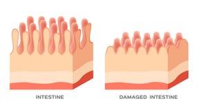 Dano do forro do intestino delgado da doença celíaca bons e villi danificados progressão gotejante do intestino ilustração do vetor
