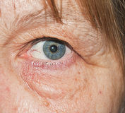 Dark-ringed eye. A dark-ringed eye of a middle age woman,with some bloodshot because of the tiredness stock photos