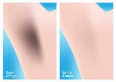 Dark and white armpit  Stock Images