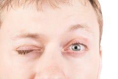 Das Blinkenaugen des Mannes Stockbilder