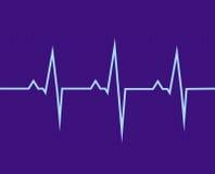 Das Elektrokardiogramm Stockfotografie