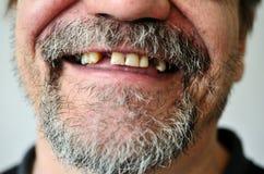 Das Gesicht des Mannes mit einem Lächeln zahnlos stockbild