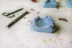 Das Gipsmodell der Kiefer mit Scheren und Skalpell zahnmedizinisches t Stockbild