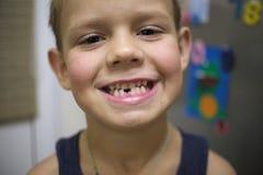 Das Lächeln eines Jungen mit einem verlorenen Milchzahn Stockfoto