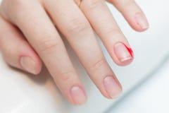 Das Mädchen erlitt einen Schnittfinger auf der Maniküre stockfoto