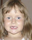 Das Mädchen hatte einen unteren Milchmeißel Stockbild