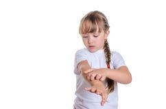 Das Mädchen verkratzt eine Hand Lizenzfreie Stockbilder