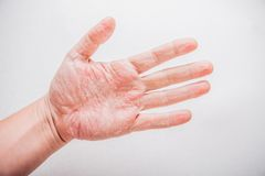 Die Einstiche gljukonat des Kalziums bei atopitscheskom die Hautentzündung die Rezensionen