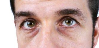 Das vey des Mannes müde Augen Stockfotografie
