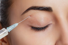 De aantrekkelijke jonge vrouw krijgt kosmetische injectie Stock Fotografie