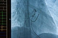 De ablatie van de catheter voor atrial fibrillatie Stock Afbeelding