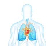 De achtermening van de röntgenstraalmens over witte achtergrond stock illustratie