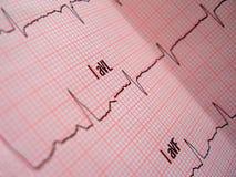 De analyse van het hart Stock Fotografie