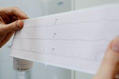 De arts houdt encephalogram van een gezonde patiënt Royalty-vrije Stock Afbeelding