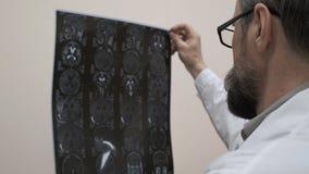 De arts onderzoekt MRI van de hersenen van de pati?nt stock videobeelden
