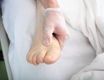 De arts onderzoekt voet met oedeem stock foto