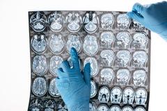 De arts ` s dient beschermende handschoenen in houdend x-ray beeld stock afbeeldingen