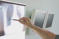 De arts toont aan gebied op röntgenogram. Stock Fotografie