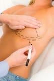 De arts van de plastische chirurgie trekt lijn geduldige borst Stock Foto's