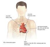 De auscultatie van het hart stock illustratie