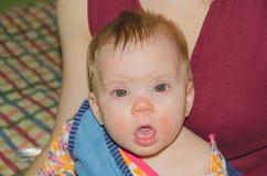 De baby is zieke snotneus en allergieën royalty-vrije stock foto's