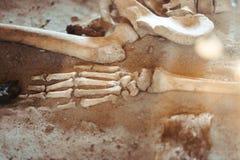 De beenderen van de menselijke hand stock foto's