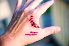 De beetwond en bloed van de nadrukhond op hand Besmetting en Hondsdolheidsconcept Royalty-vrije Stock Foto's
