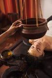 De behandeling van Ayurvedicshirodhara in India Stock Foto
