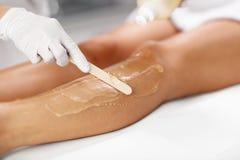 De Behandeling van schoonheidsspecialistgiving epilation laser aan Vrouw op Benen royalty-vrije stock foto's