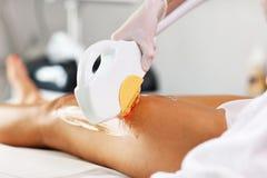 De Behandeling van schoonheidsspecialistgiving epilation laser aan Vrouw op Benen royalty-vrije stock foto