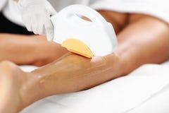 De Behandeling van schoonheidsspecialistgiving epilation laser aan Vrouw op Benen stock afbeeldingen