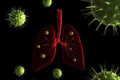 De besmetting van het virus in longen vector illustratie