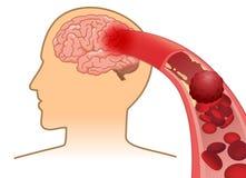 De bloedcel kan de stroom van ` t in menselijke hersenen omdat belemmerde slagaders door bloedstolsel vector illustratie