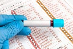 De bloedonderzoeken van de handholding over medisch rapport Royalty-vrije Stock Afbeelding