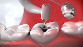 De boor die van de tandarts een zieke tand behandelen Stock Afbeeldingen