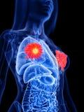 de borst de klierentumor van een vrouw vector illustratie