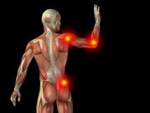 De conceptuele pijn van de menselijk lichaamsanatomie op zwarte Royalty-vrije Stock Afbeelding