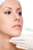 De de lippencorrectie van Botox, sluit omhoog Stock Afbeelding