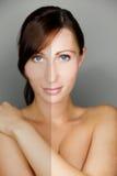 De de schoonheidshuid van de vrouw vergelijkt Stock Foto's