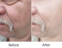 De dermatologie, de kosmetiek, correctie, plastiek stock fotografie