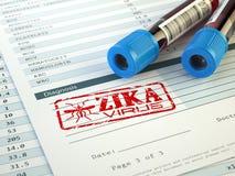 De diagnose van het Zikavirus Bloedonderzoeksteekproef met Zika-viruszegel, stock illustratie