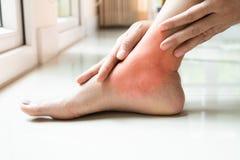 De de enkelverwonding van het vrouwenbeen/pijnlijk, vrouwen raakt het been van de pijnenkel royalty-vrije stock afbeelding